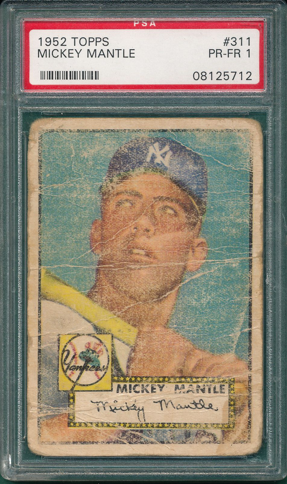 1952 Topps Mantle Worth It In Any Condition Archive